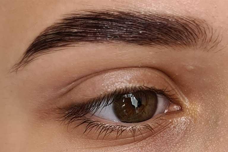 Laminarea sprancenelor este un tratament in tendinte, foarte cautat in aceasta perioada, datorita faptului ca permite trasaturilor faciale sa capete un aspect mult mai tanar si mai atragator.